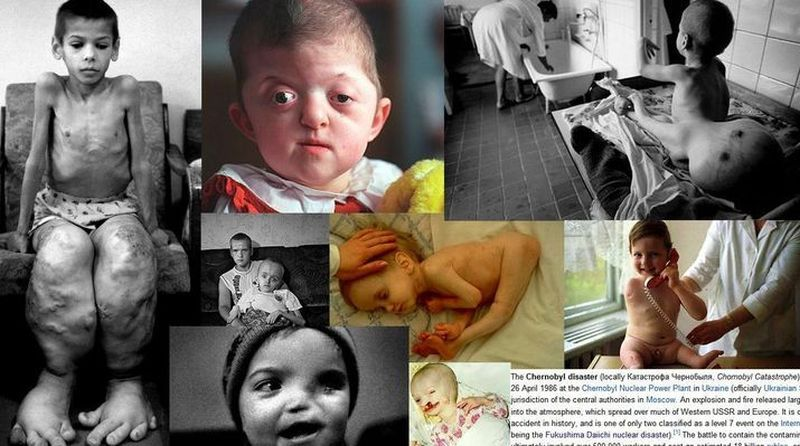 image006ukrainians-cancer-chernobyl-disaster-20160429-006