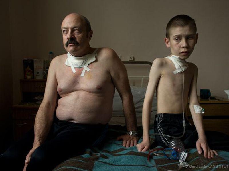 image007ukrainians-cancer-chernobyl-disaster-20160429-007