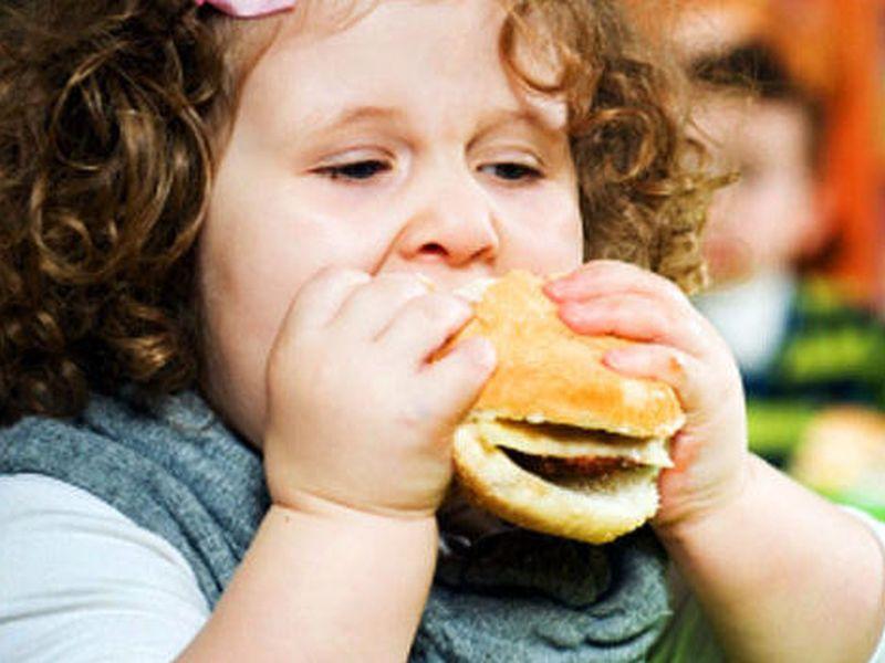 obesity-kids-20160507