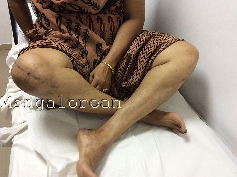 TKR cross legged